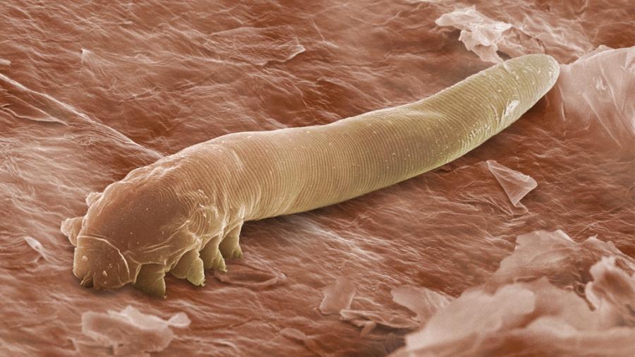 paraziti kako ih se rijesiti)